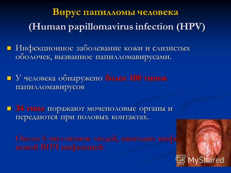 Вирус папилломы человека (Human papillomavirus infection (HPV) Инфекционное заболевание кожи и слизистых оболочек, вызванное папилломавирусами. Инфекционное заболевание кожи и слизистых оболочек, вызванное папилломавирусами. У человека обнаружено бол