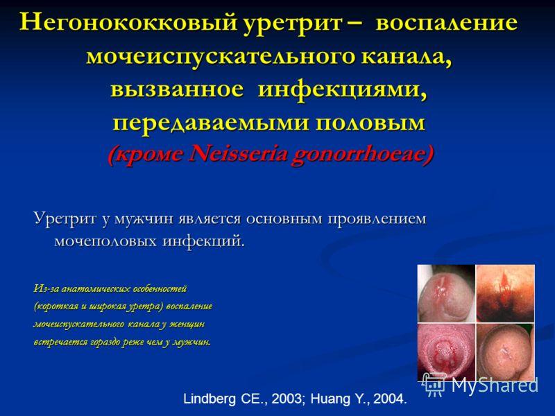 Негонококковый уретрит – воспаление мочеиспускательного канала, вызванное инфекциями, передаваемыми половым (кроме Neisseria gonorrhoeae) Уретрит у мужчин является основным проявлением мочеполовых инфекций. Из-за анатомических особенностей (короткая
