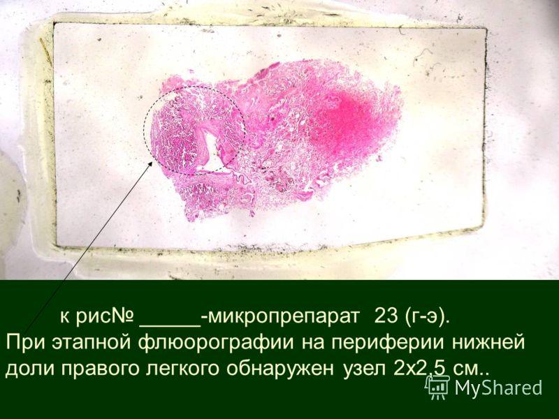к рис _____-микропрепарат 23 (г-э). При этапной флюорографии на периферии нижней доли правого легкого обнаружен узел 2х2,5 см..