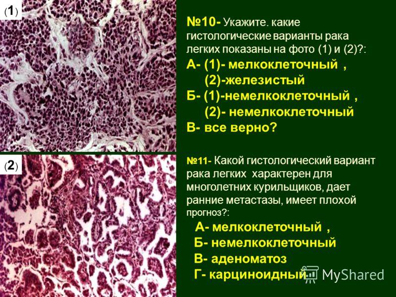 11- Какой гистологический вариант рака легких характерен для многолетних курильщиков, дает ранние метастазы, имеет плохой прогноз?: А- мелкоклеточный, Б- немелкоклеточный В- аденоматоз Г- карциноидный 10- Укажите. какие гистологические варианты рака