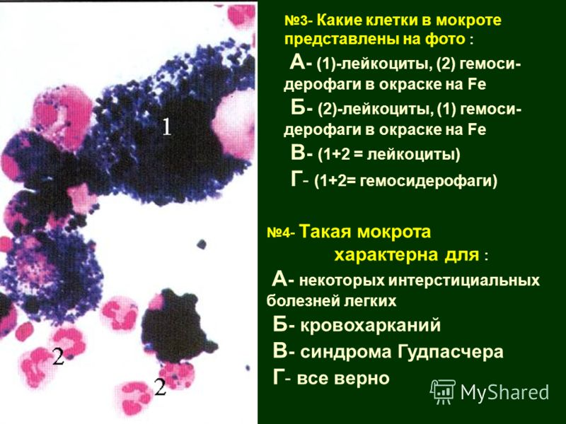 4- Такая мокрота характерна для : А - некоторых интерстициальных болезней легких Б - кровохарканий В - синдрома Гудпасчера Г - все верно 3- Какие клетки в мокроте представлены на фото : А - (1)-лейкоциты, (2) гемоси- дерофаги в окраске на Fe Б - (2)-