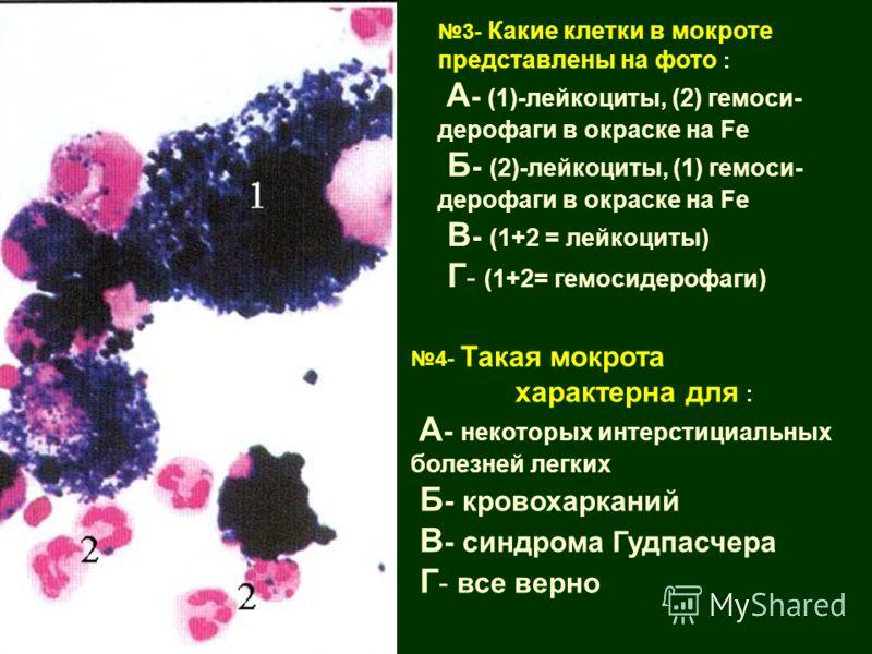 Гудпасчера синдром фото