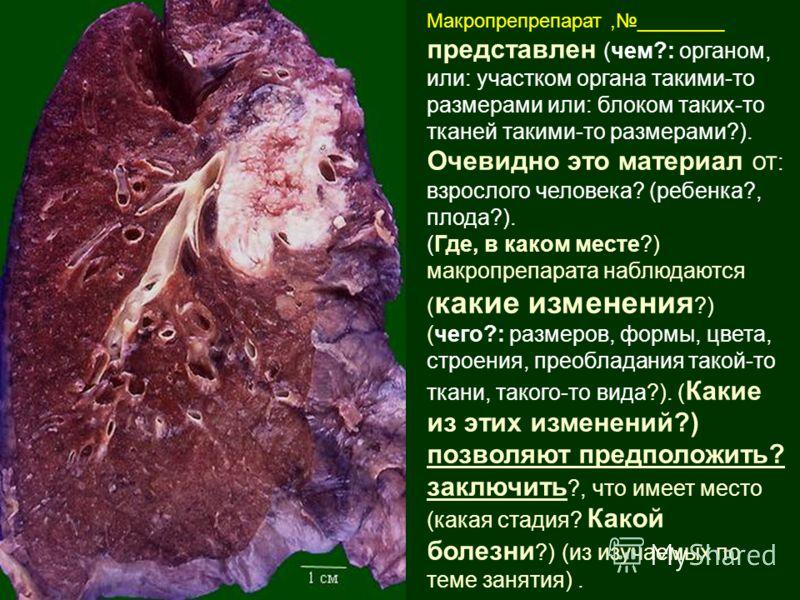 Макропрепрепарат,________ представлен (чем?: органом, или: участком органа такими-то размерами или: блоком таких-то тканей такими-то размерами?). Очевидно это материал от : взрослого человека? (ребенка?, плода?). (Где, в каком месте?) макропрепарата