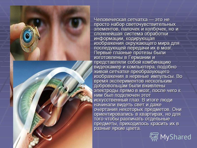 Человеческая сетчатка это не просто набор светочувствительных элементов, палочек и колбочек, но и сложнейшая система обработки информации, кодирующая изображения окружающего мира для последующей передачи их в мозг. Первые глазные протезы были изготов