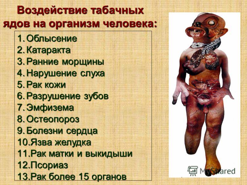 1.Облысение 2.Катаракта 3.Ранние морщины 4.Нарушение слуха 5.Рак кожи 6.Разрушение зубов 7.Эмфизема 8.Остеопороз 9.Болезни сердца 10.Язва желудка 11.Рак матки и выкидыши 12.Псориаз 13.Рак более 15 органов Воздействие табачных ядов на организм человек