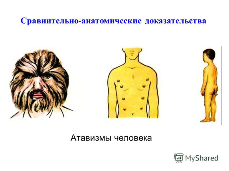 Атавизмы человека Сравнительно-анатомические доказательства
