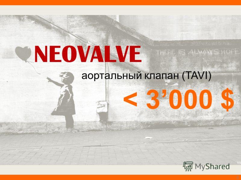 NEOVALVE 6 аортальный клапан (TAVI) < 3000 $