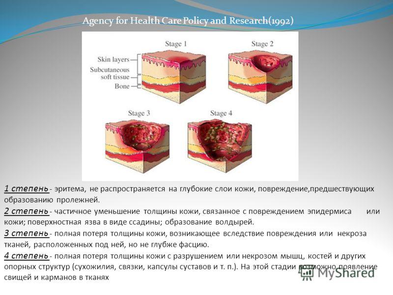 1 степень - эритема, не распространяется на глубокие слои кожи, повреждение,предшествующих образованию пролежней. 2 степень - частичное уменьшение толщины кожи, связанное с повреждением эпидермиса или кожи; поверхностная язва в виде ссадины; образова