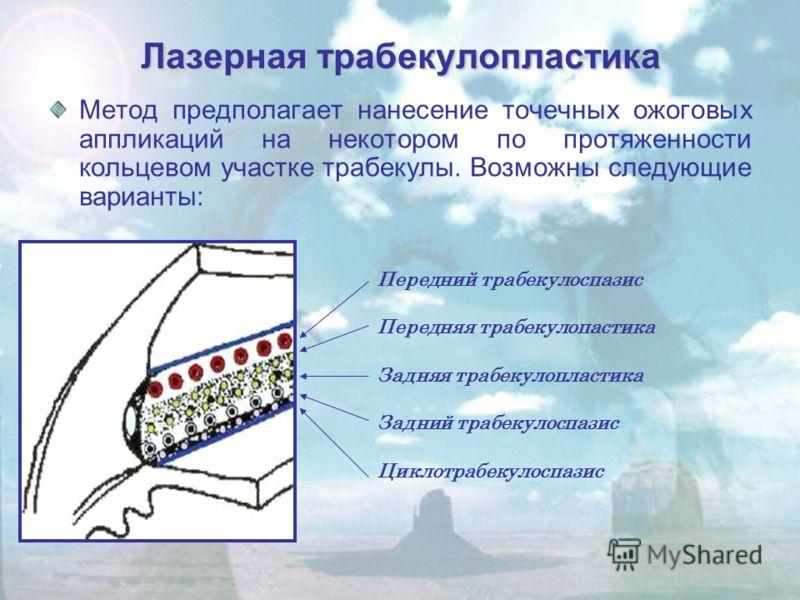 Лазерная трабекулопластика Метод предполагает нанесение точечных ожоговых аппликаций на некотором по протяженности кольцевом участке трабекулы. Возможны следующие варианты: Передний трабекулоспазис Передняя трабекулопастика Задняя трабекулопластика З