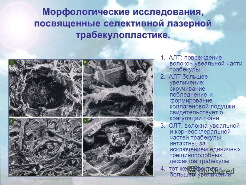 Морфологические исследования, посвященные селективной лазерной трабекулопластике. 1. АЛТ: повреждение волокон увеальной части трабекулы 2. АЛТ большее увеличение: скручивание, побледнение и формирование коллагеновой подушки свидетельствует о коагуляц
