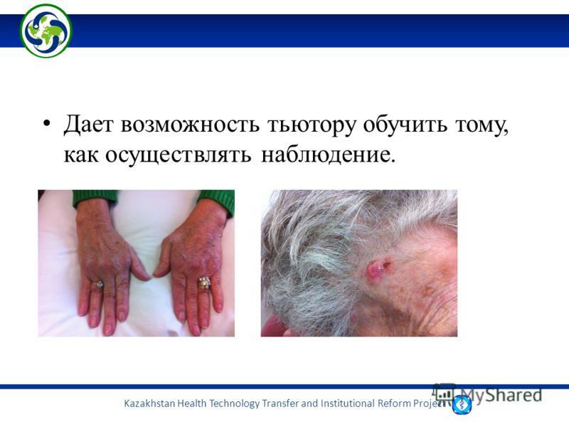 Kazakhstan Health Technology Transfer and Institutional Reform Project Дает возможность тьютору обучить тому, как осуществлять наблюдение.
