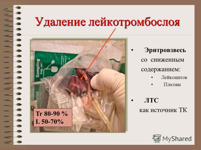 Удаление лейкотромбослоя Эритровзвесь со сниженным содержанием: Лейкоцитов Плазмы ЛТС как источник ТК Tr 80-90 % L 50-70%