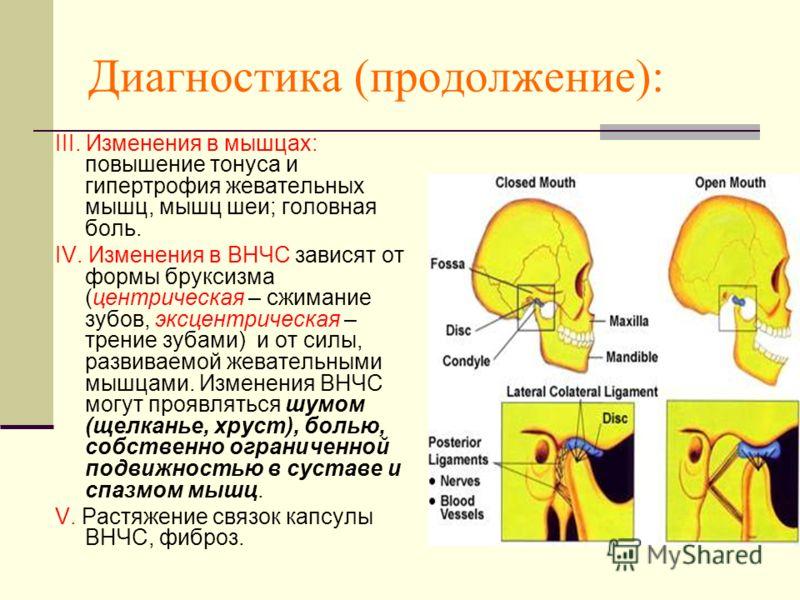 Диагностика (продолжение): III. Изменения в мышцах: повышение тонуса и гипертрофия жевательных мышц, мышц шеи; головная боль. IV. Изменения в ВНЧС зависят от формы бруксизма (центрическая – сжимание зубов, эксцентрическая – трение зубами) и от силы,