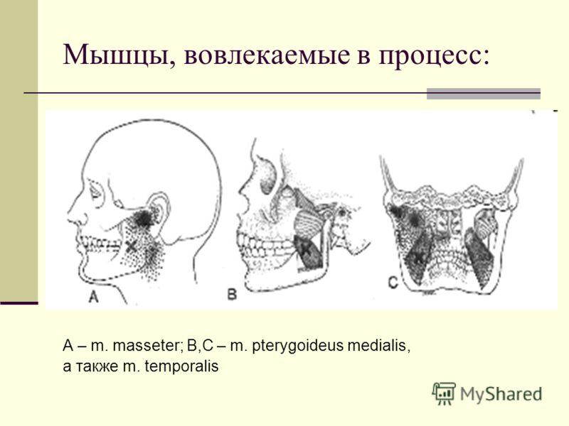 Мышцы, вовлекаемые в процесс: А – m. masseter; B,C – m. pterygoideus medialis, а также m. temporalis