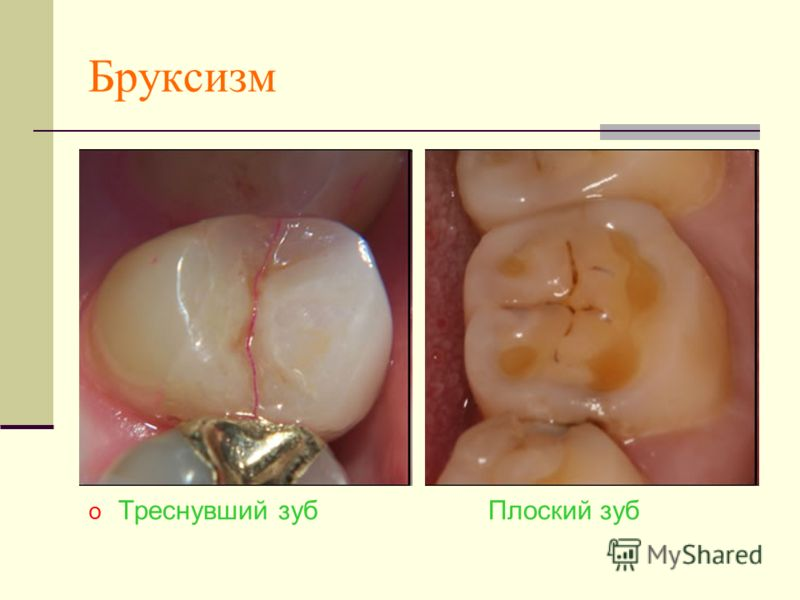 Бруксизм o Треснувший зуб Плоский зуб