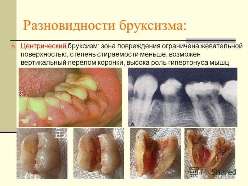 Разновидности бруксизма: o Центрический бруксизм: зона повреждения ограничена жевательной поверхностью, степень стираемости меньше, возможен вертикальный перелом коронки, высока роль гипертонуса мышц