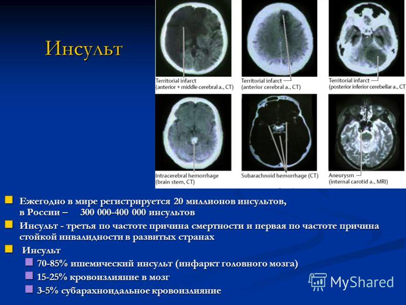 Инсульт Инсульт Ежегодно в мире регистрируется 20 миллионов инсультов, в России – 300 000-400 000 инсультов Ежегодно в мире регистрируется 20 миллионов инсультов, в России – 300 000-400 000 инсультов Инсульт - третья по частоте причина смертности и п