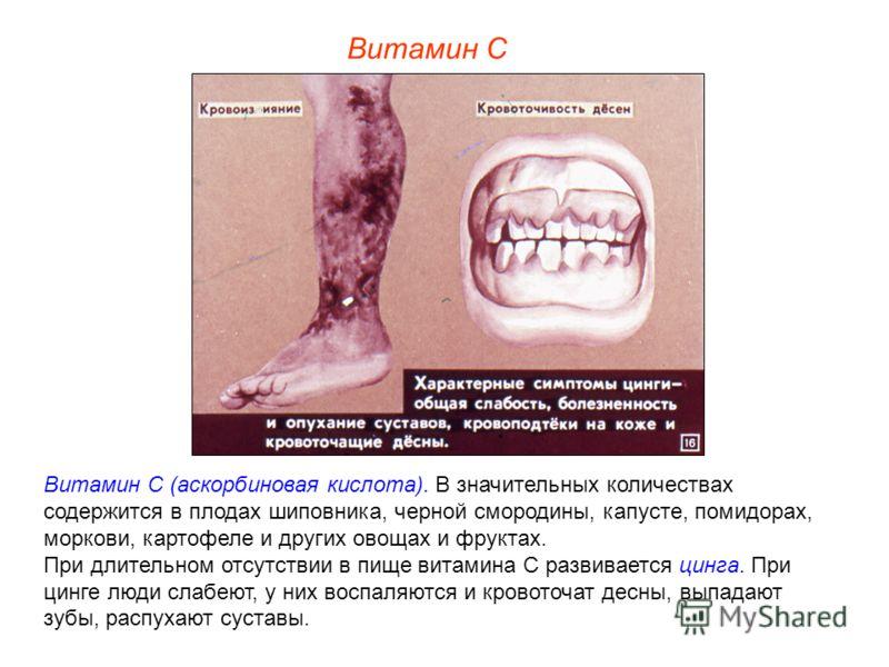 Витамин С Витамин С (аскорбиновая кислота). В значительных количествах содержится в плодах шиповника, черной смородины, капусте, помидорах, моркови, картофеле и других овощах и фруктах. При длительном отсутствии в пище витамина С развивается цинга. П