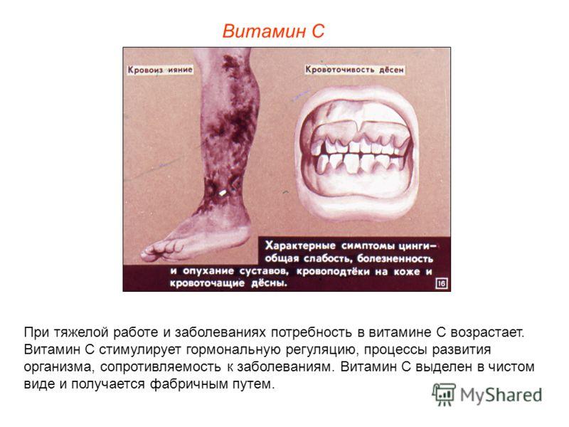 При тяжелой работе и заболеваниях потребность в витамине С возрастает. Витамин С стимулирует гормональную регуляцию, процессы развития организма, сопротивляемость к заболеваниям. Витамин С выделен в чистом виде и получается фабричным путем. Витамин С
