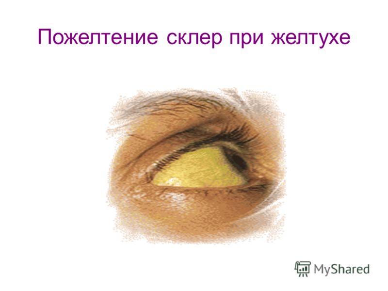 Пожелтение склер при желтухе
