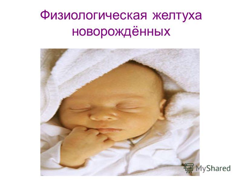 Физиологическая желтуха новорождённых