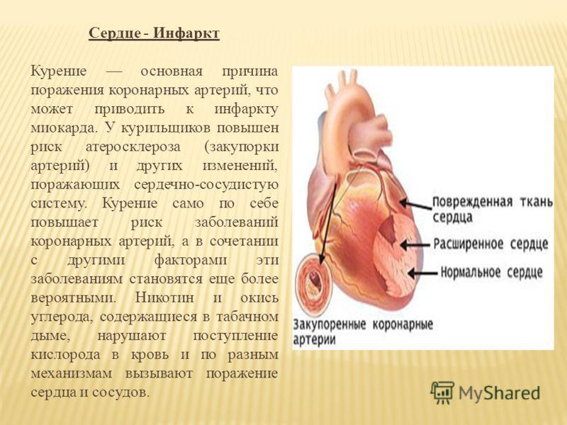 Сердце - Инфаркт Курение основная причина поражения коронарных артерий, что может приводить к инфаркту миокарда. У курильщиков повышен риск атеросклероза (закупорки артерий) и других изменений, поражающих сердечно-сосудистую систему. Курение само по