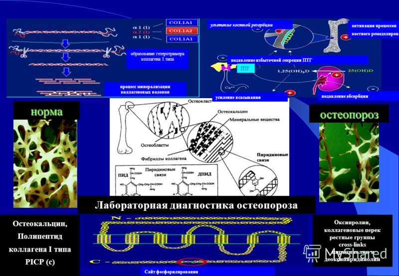 норма остеопороз процесс минерализации коллагеновых волокон образование гетеротримера коллагена 1 типа усиление всасывания подавление абсорбции угнетение костной резорбции активация процессов костного ремоделирования подавление избыточной секреции ПТ