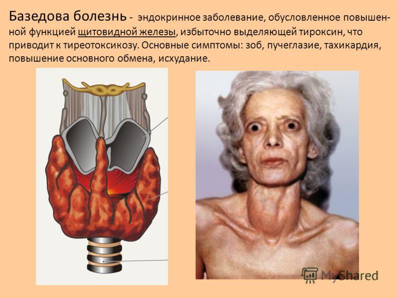 Базедова болезнь - эндокринное заболевание, обусловленное повышен- ной функцией щитовидной железы, избыточно выделяющей тироксин, что приводит к тиреотоксикозу. Основные симптомы: зоб, пучеглазие, тахикардия, повышение основного обмена, исхудание.
