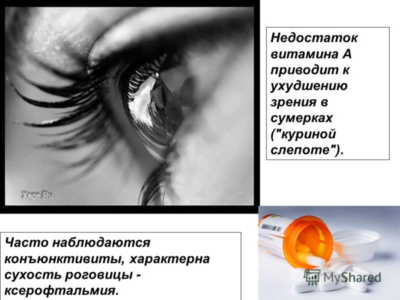 Недостаток витамина A приводит к ухудшению зрения в сумерках (куриной слепоте). Часто наблюдаются конъюнктивиты, характерна сухость роговицы - ксерофтальмия.