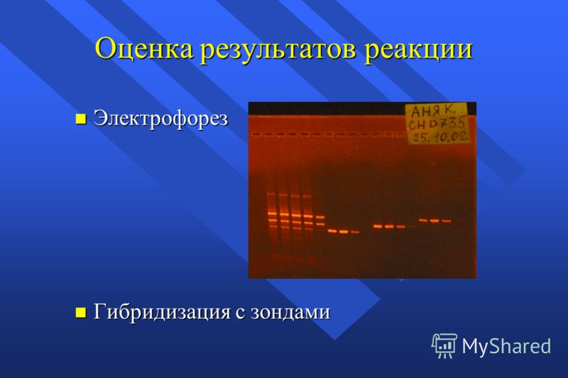 Оценка результатов реакции n Электрофорез n Гибридизация с зондами