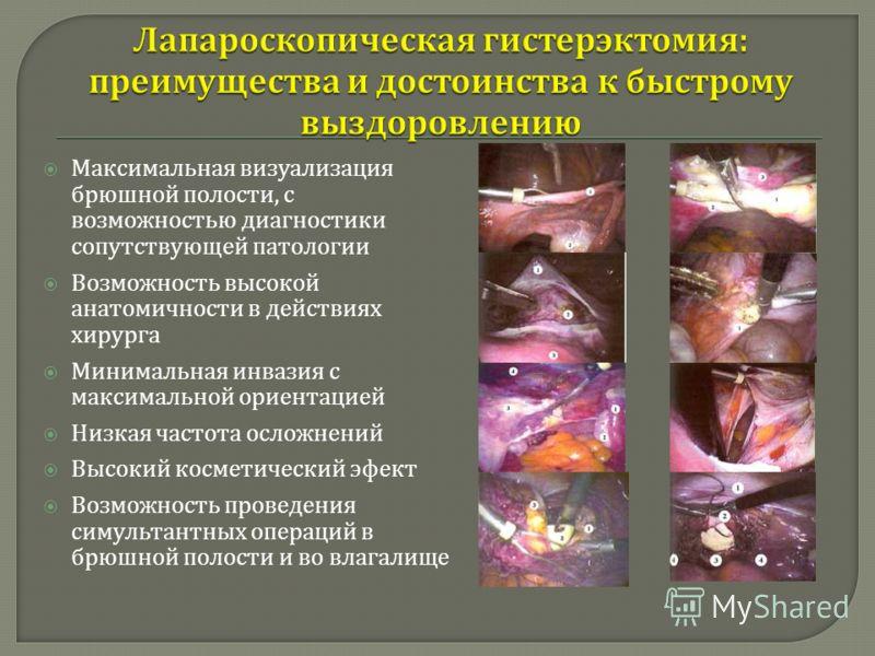 Максимальная визуализация брюшной полости, с возможностью диагностики сопутствующей патологии Возможность высокой анатомичности в действиях хирурга Минимальная инвазия с максимальной ориентацией Низкая частота осложнений Высокий косметический эфект В
