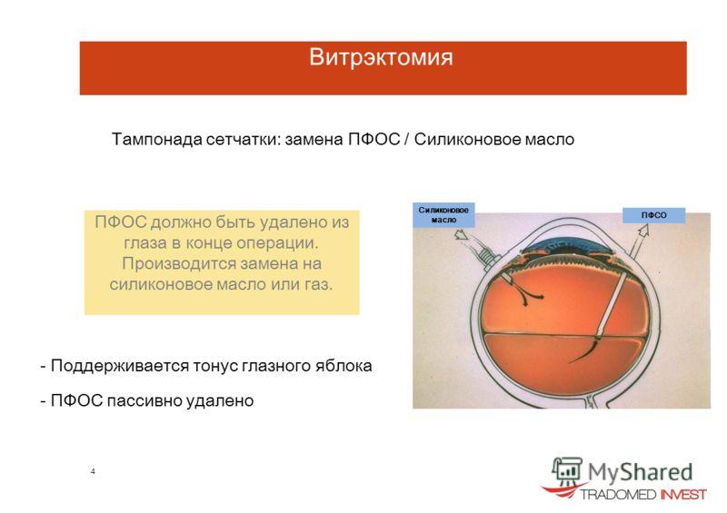 Витрэктомия Тампонада сетчатки: замена ПФОС / Силиконовое масло ПФОС должно быть удалено из глаза в конце операции. Производится замена на силиконовое масло или газ. - Поддерживается тонус глазного яблока - ПФОС пассивно удалено 4 Силиконовое масло П