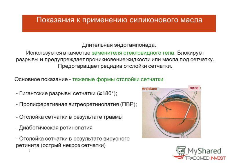 Показания к применению силиконового масла Длительная эндотампонада. Используется в качестве заменителя стекловидного тела. Блокирует разрывы и предупреждает проникновение жидкости или масла под сетчатку. Предотвращает рецидив отслойки сетчатки. Основ