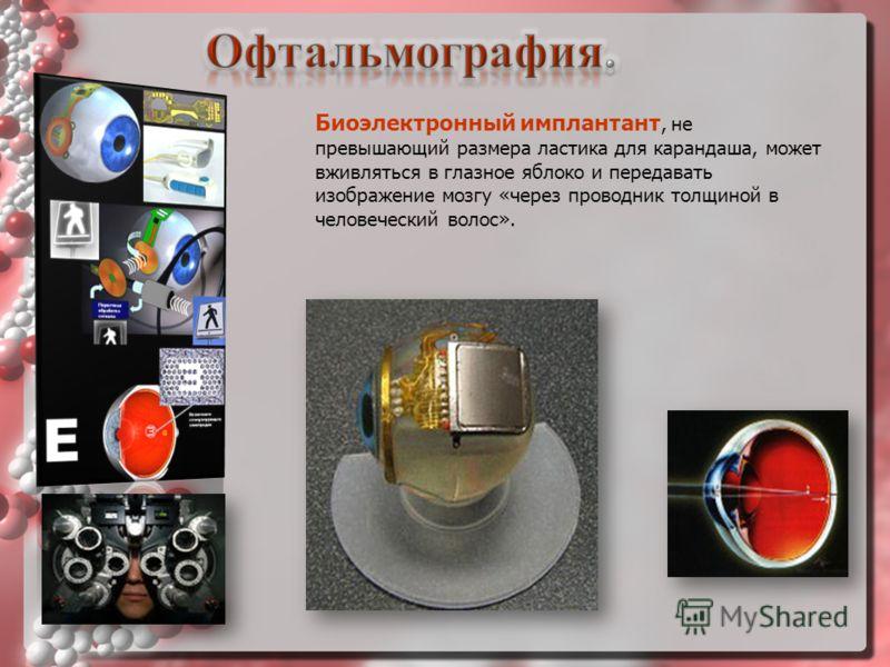 Биоэлектронный имплантант, не превышающий размера ластика для карандаша, может вживляться в глазное яблоко и передавать изображение мозгу «через проводник толщиной в человеческий волос».