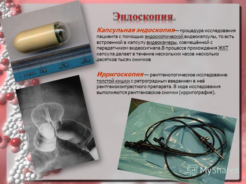 Капсульная эндоскопия процедура исследования пациента с помощью эндоскопической видеокапсулы, то есть встроенной в капсулу видеокамеры, совмещённой с передатчиком видеосигнала.В процессе прохождения ЖКТ капсула делает в течение нескольких часов неско