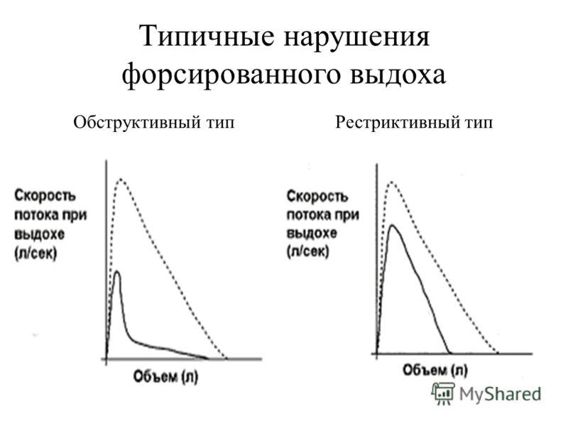 Типичные нарушения форсированного выдоха Обструктивный типРестриктивный тип