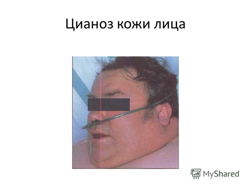 Цианоз кожи лица