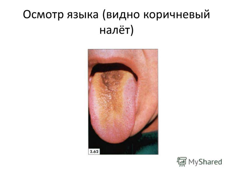 Осмотр языка (видно коричневый налёт)