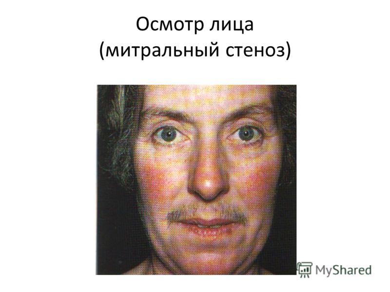 Осмотр лица (митральный стеноз)