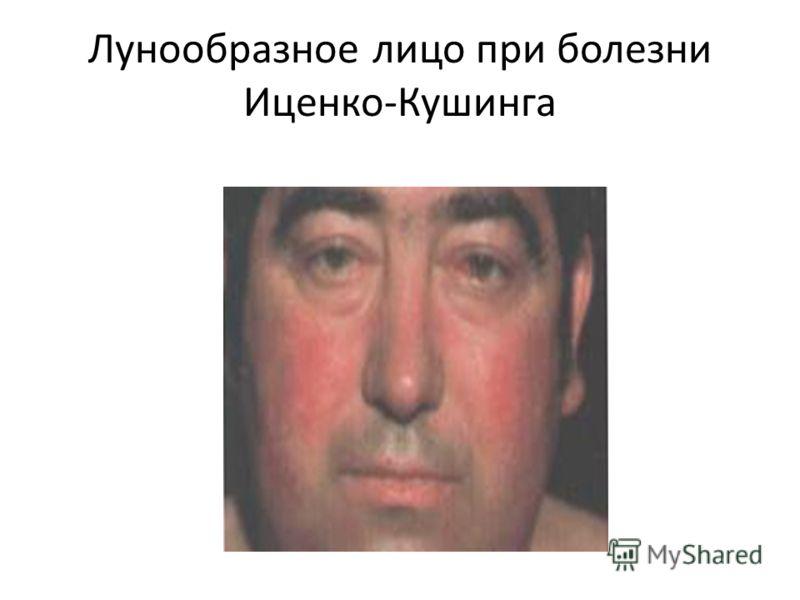 Лунообразное лицо при болезни Иценко-Кушинга