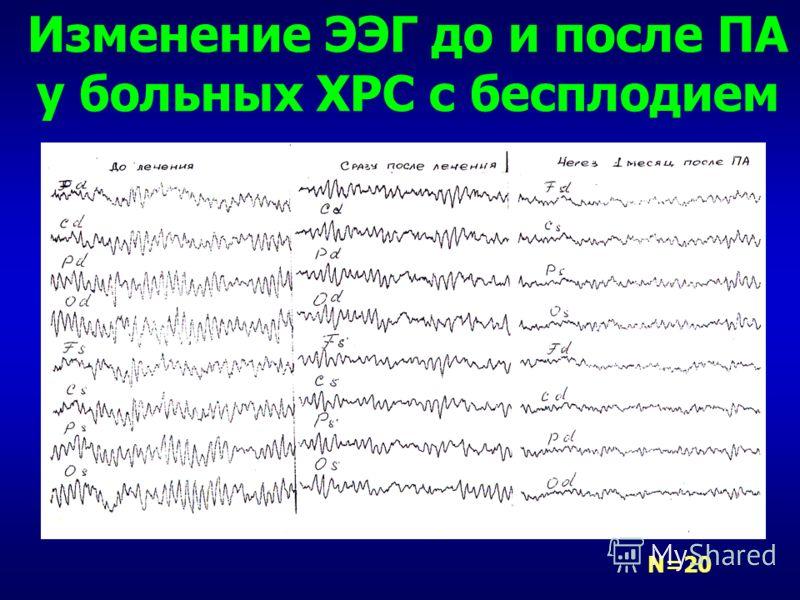 Изменение ЭЭГ до и после ПА у больных ХРС с бесплодием N=20