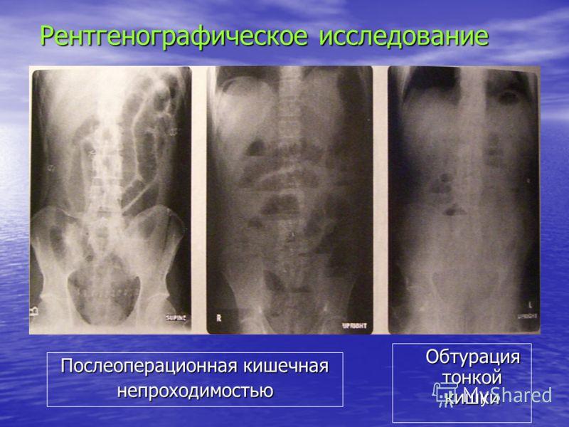 Рентгенографическое исследование Послеоперационная кишечная непроходимостью Обтурация тонкой кишки Обтурация тонкой кишки