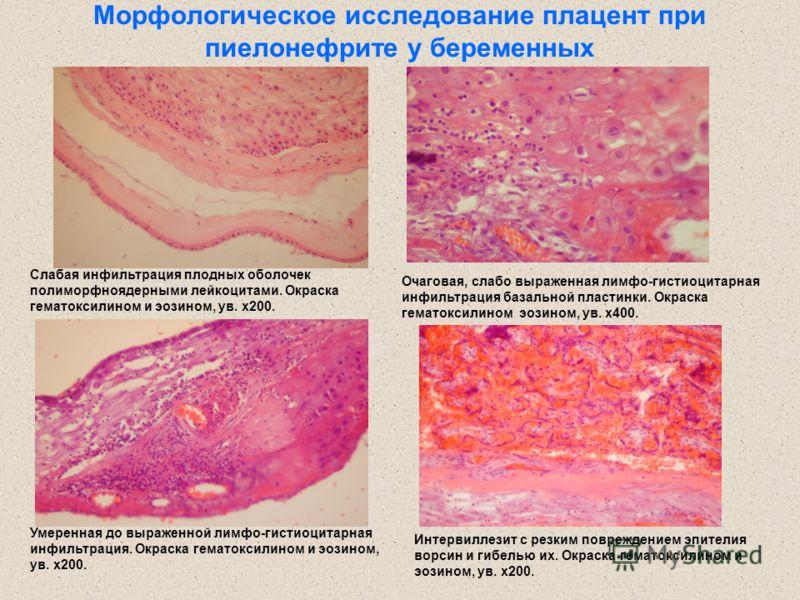Морфологическое исследование плацент при пиелонефрите у беременных Слабая инфильтрация плодных оболочек полиморфноядерными лейкоцитами. Окраска гематоксилином и эозином, ув. х200. Умеренная до выраженной лимфо-гистиоцитарная инфильтрация. Окраска гем