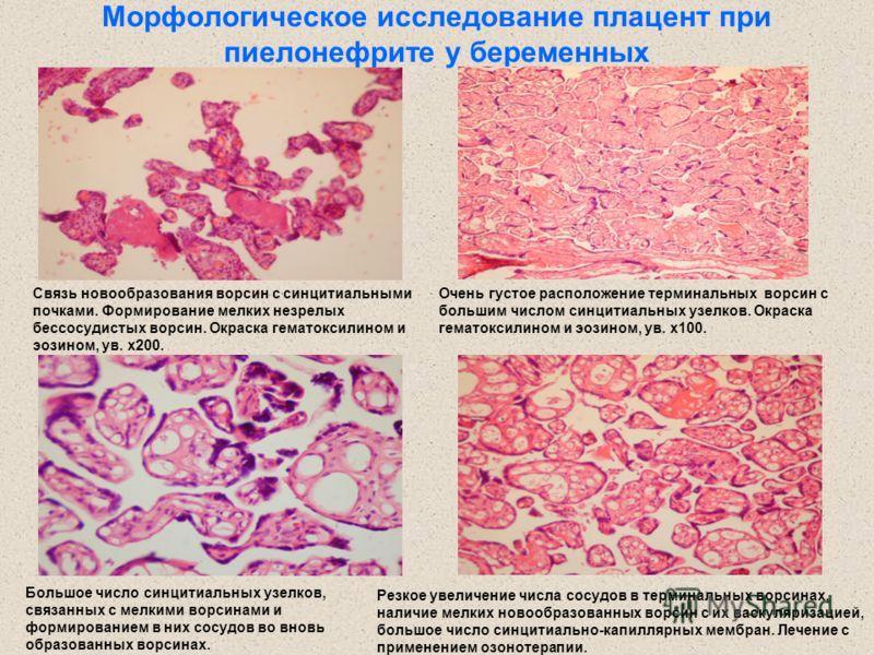 Морфологическое исследование плацент при пиелонефрите у беременных Связь новообразования ворсин с синцитиальными почками. Формирование мелких незрелых бессосудистых ворсин. Окраска гематоксилином и эозином, ув. х200. Резкое увеличение числа сосудов в