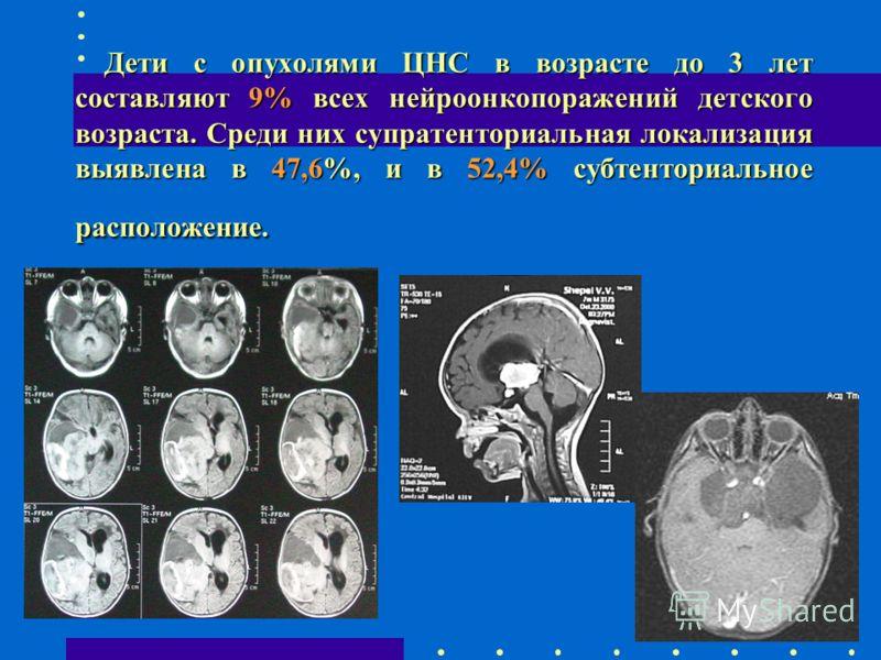 Дети с опухолями ЦНС в возрасте до 3 лет составляют 9% всех нейроонкопоражений детского возраста. Среди них супратенториальная локализация выявлена в 47,6%, и в 52,4% субтенториальное расположение. Дети с опухолями ЦНС в возрасте до 3 лет составляют