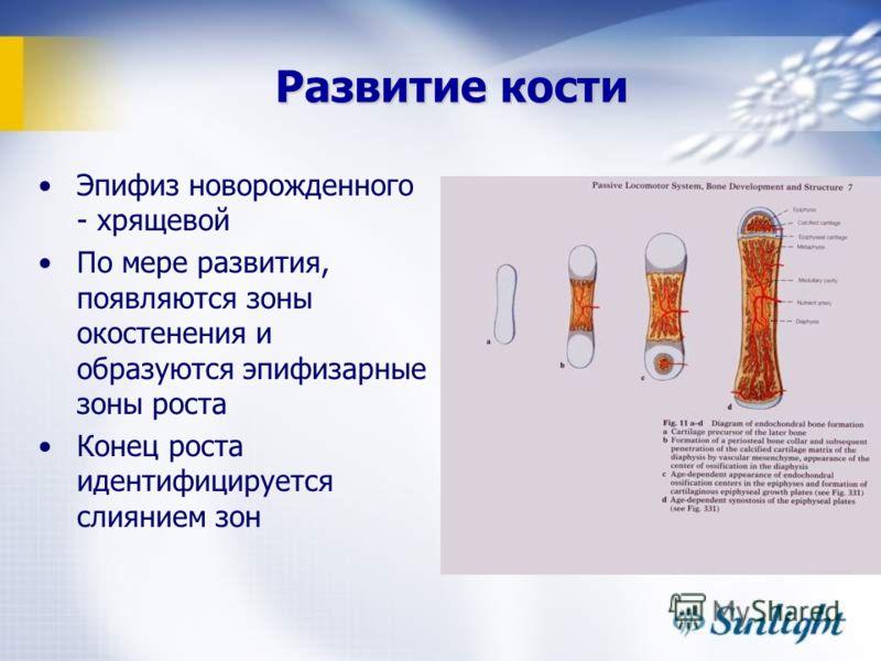 Развитие кости Эпифиз новорожденного - хрящевой По мере развития, появляются зоны окостенения и образуются эпифизарные зоны роста Конец роста идентифицируется слиянием зон