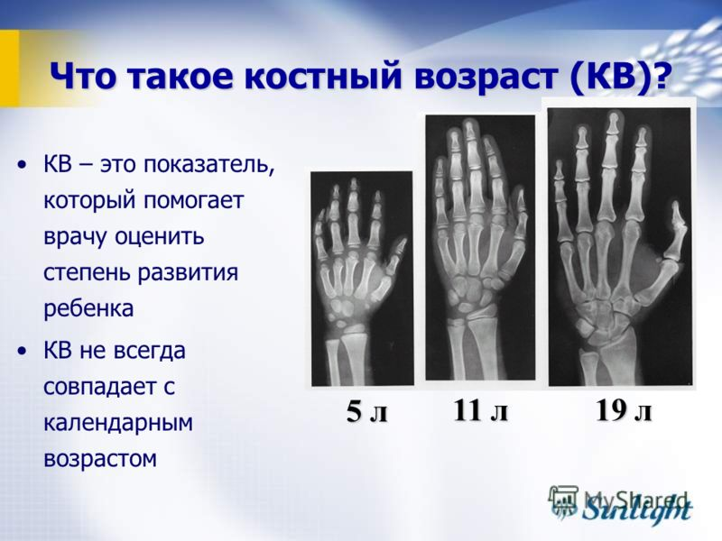 Что такое костный возраст (КВ)? КВ – это показатель, который помогает врачу оценить степень развития ребенка КВ не всегда совпадает с календарным возрастом 5 л 11 л 19 л