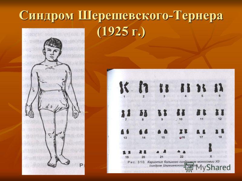 Синдром Шерешевского-Тернера (1925 г.)