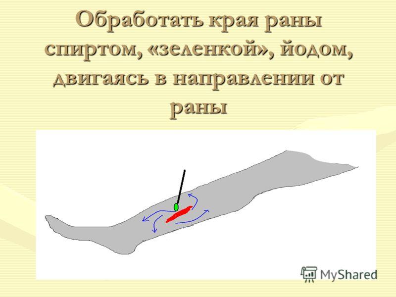 Обработать края раны спиртом, «зеленкой», йодом, двигаясь в направлении от раны