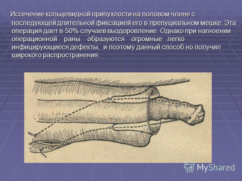 Иссечение кольцевидной припухлости на половом члене с последующей длительной фиксацией его в препуциальном мешке. Эта операция дает в 50% случаев выздоровление. Однако при нагноении операционной раны образуются огромные легко инфицирующиеся дефекты,